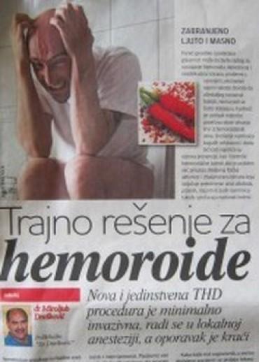 Trajno rešenje za hemoroide